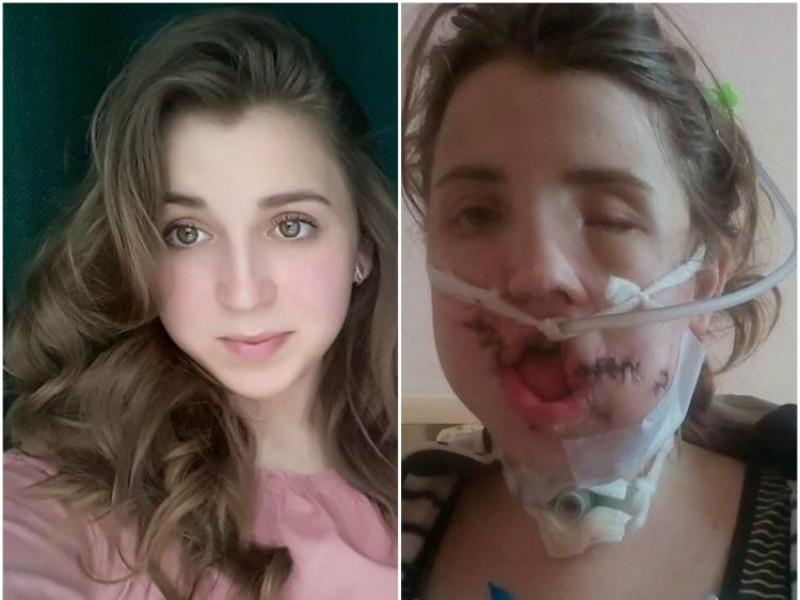 Іванка до аварії і після